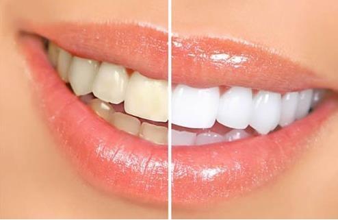 Como Branquear Naturalmente Os Dentes Amarelos